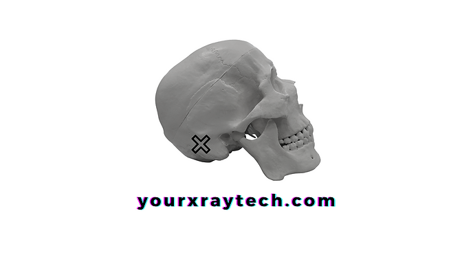 Your X-Ray Tech yourxraytech.com