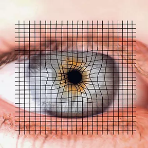 Auge AMD.png
