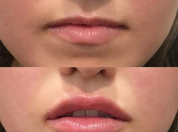 lip-fillers.jpg