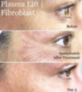 fibro-blast.jpg