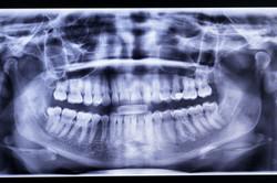 39__cmd-dentiste_Regis_Colombo_web