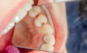 Dental caries. Filling with dental compo