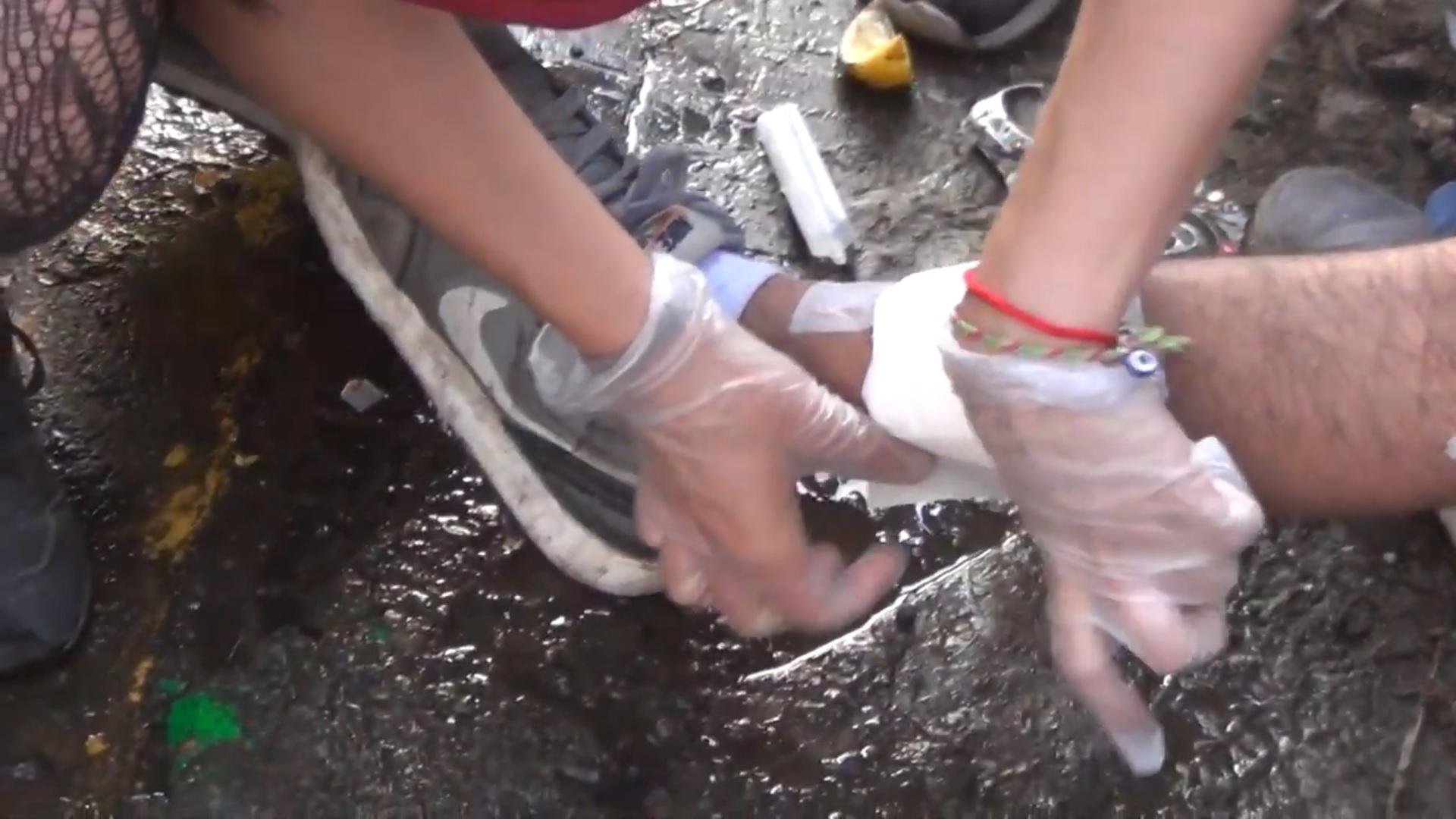 Sanación Herida causada por Balín.