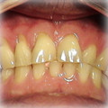 Veneers-Before-1.jpg