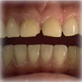 Veneers-Before-4.jpg