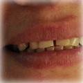 Veneers-Before-8.jpg