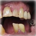 Implants Before 6.jpg