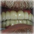 Implants After 6.jpg