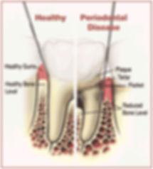 healthy-vs-periodontal.jpg