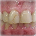 Veneers-Before-5.jpg