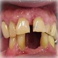 Implants Before 5.jpg