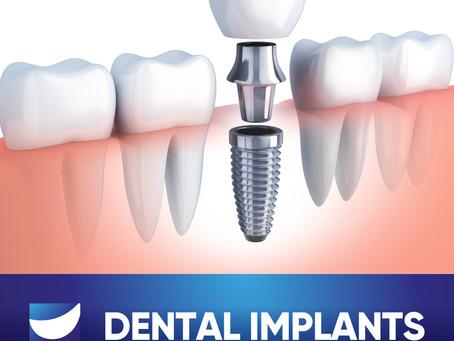 Dental Implants: Am I a Candidate?