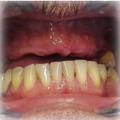 Implants before 4.jpg