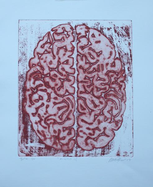 Aivoitus