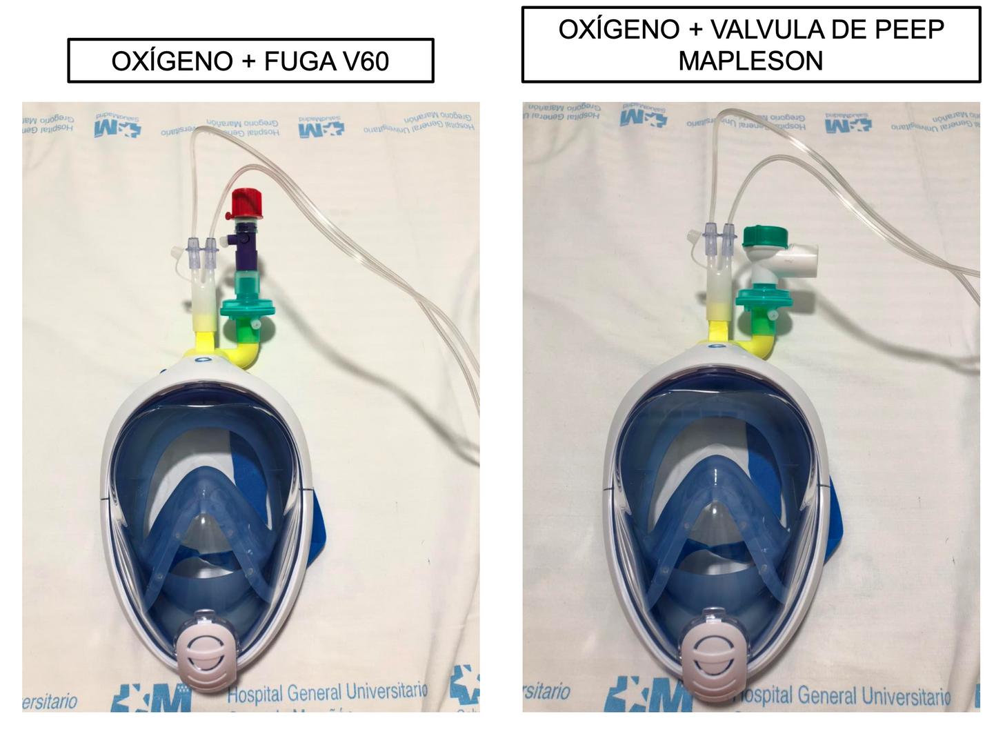 funcionamento fuga V60 e PEEP com método usado pelo hospital espanhol HGUGM