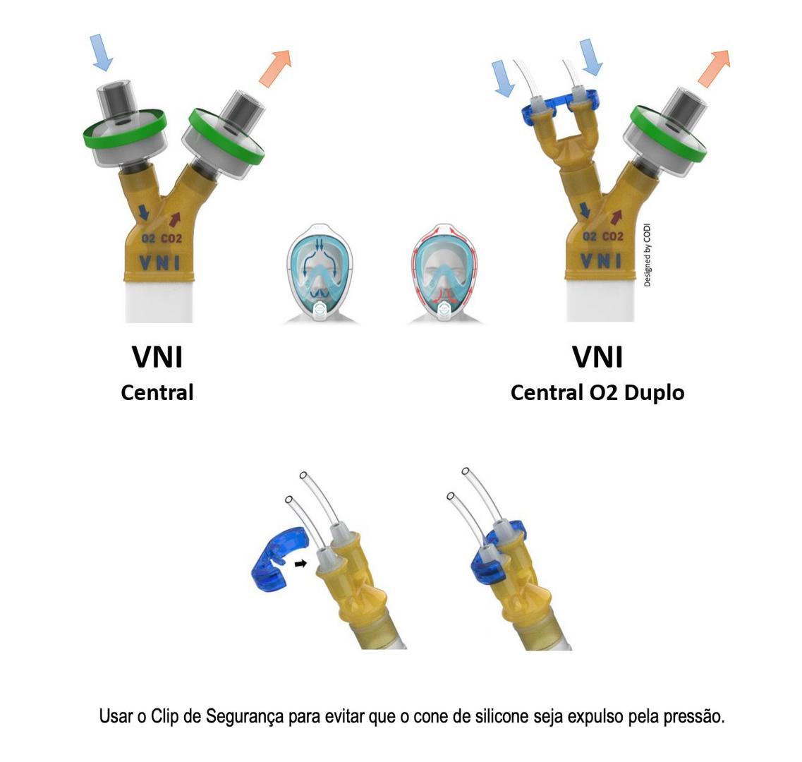 máscara de VNI (Peça Y - CODI)