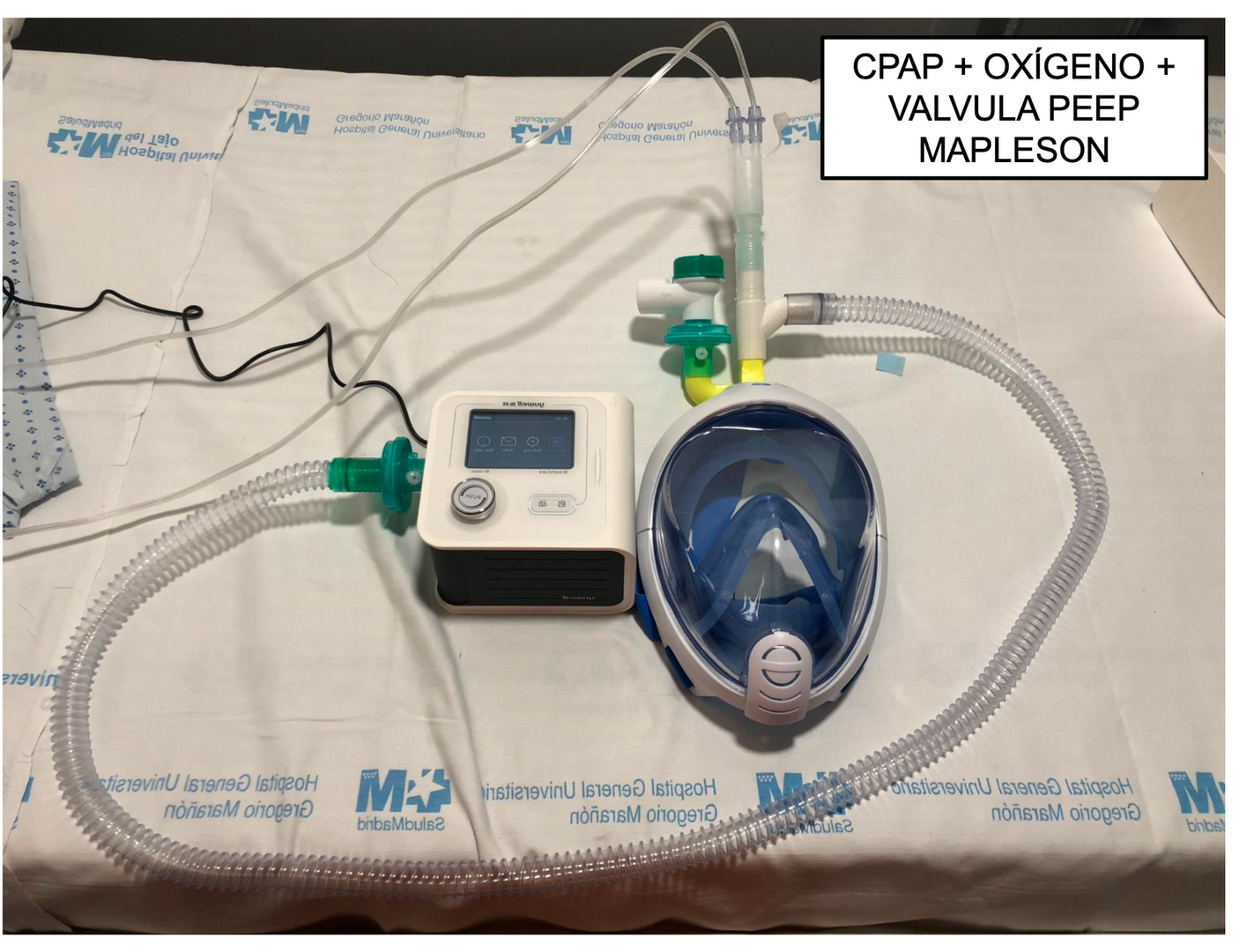 funcionamento CPAP + PEEP com método usado pelo hospital espanhol HGUGM