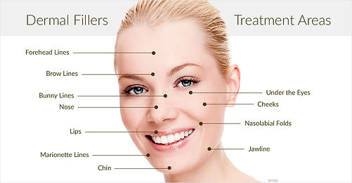 dermal-filler-treatment-areas-san-antoni