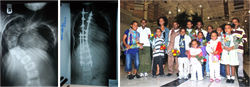 Helping Spine Patients
