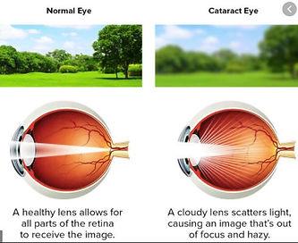 Cataract Capture 2 .JPG