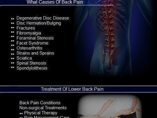 Low-Back Pain Triggers