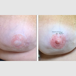 Areola Correction