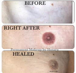 Areola Before,After and Healed.