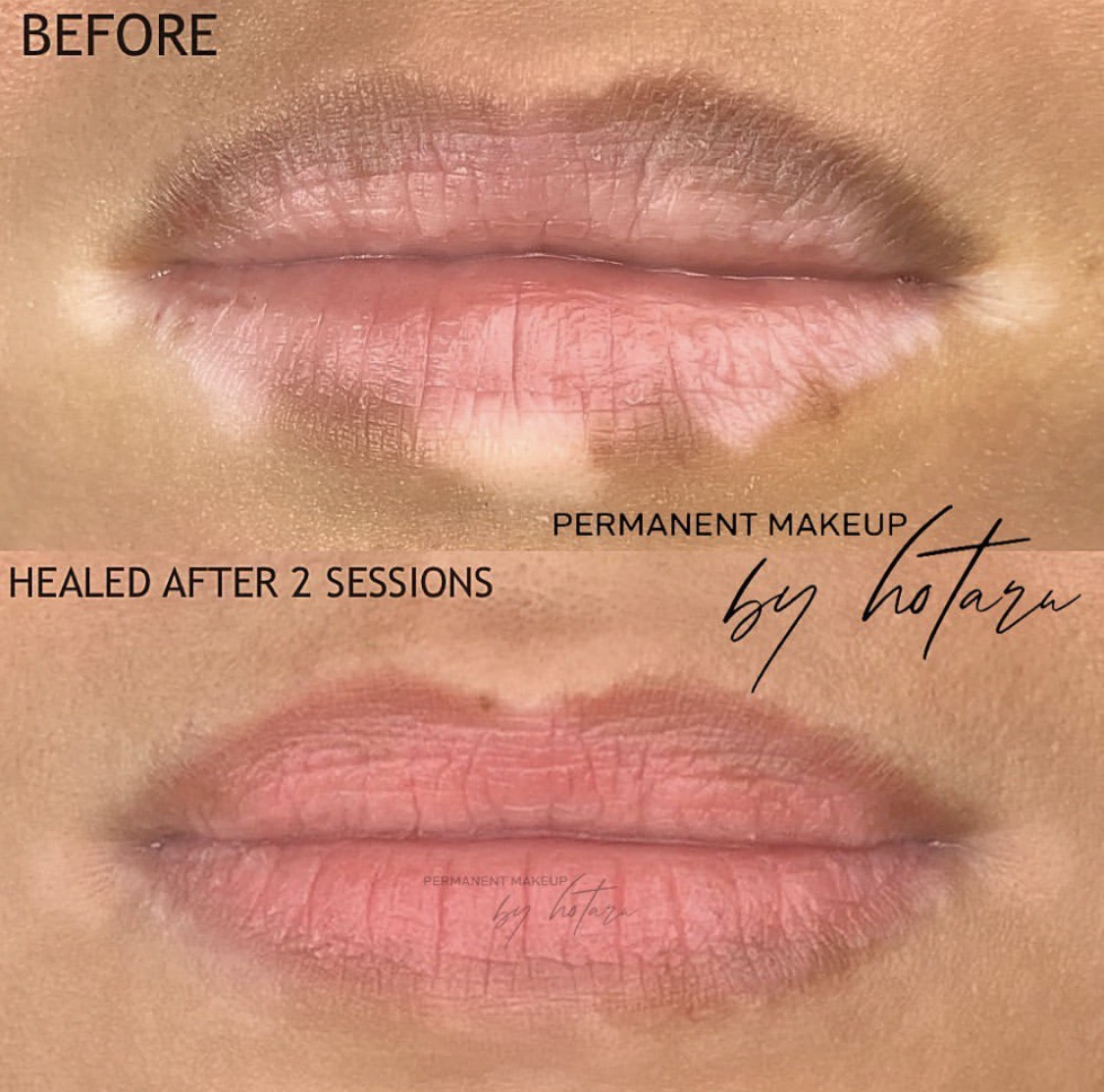 Lips correction and Vitiligo camoufa