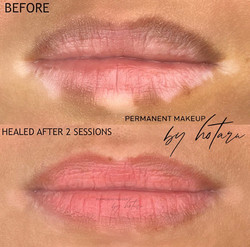 Lips correction and Vitiligo camoufa
