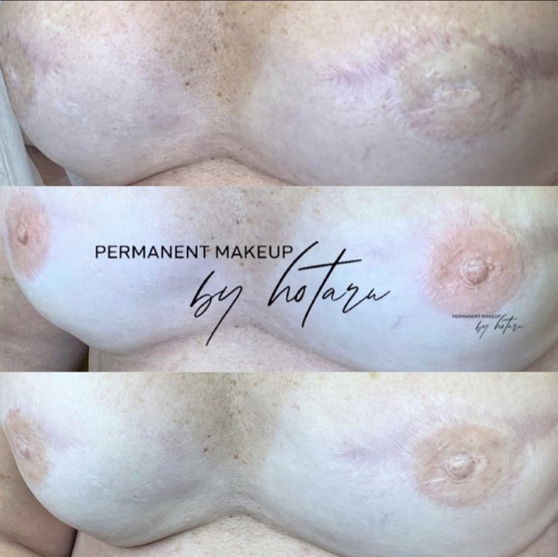 Areola correction tattoo