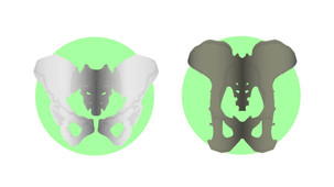 Sex differences in the pelvis are not uniquely human