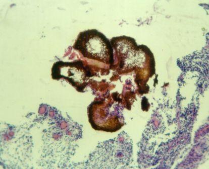 Grão eumicótico microscopia
