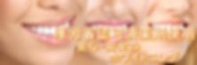 新橋ホワイトニング 新橋1丁目ホワイトニング 歯磨き粉 新橋2丁目ホワイトニング自宅 新橋3丁目ホワイトニング 東京 新橋4丁目ホワイトニング 歯 新橋5丁目ホワイトニングバー 新橋6丁目ホワイトニング 効果 新橋駅ホワイトニング 新宿 汐留ホワイトニング おすすめ 汐留駅ホワイトニングクリアコンディショナー 御成門ホワイトニング amazon 御成門駅ホワイトニング アットコスメ 虎ノ門ホワイトニング アメリカ 虎ノ門駅ホワイトニング アイコス 霞が関ホワイトニング アルミホイル 霞が関駅ホワイトニング 安全 日比谷ホワイトニング a1 日比谷駅ホワイトニング 秋田 有楽町ホワイトニング 明石 有楽町駅ホワイトニング 洗口液 銀座ホワイトニング 痛い 銀座駅ホワイトニング 池袋 東銀座ホワイトニング 一回 東銀座駅ホワイトニング 医療費控除 築地市場ホワイトニング いくら 築地市場駅ホワイトニング 茨城 新橋ホワイトニング 印象 新橋1丁目ホワイトニング 痛くない 新橋2丁目ホワイトニング 意味 新橋3丁目ホワイトニング インスタ 新橋4丁目ホワイトニング 梅田 新橋5丁目ホワイトニング うがい 新橋6丁目ホワイトニング 浦和 新橋駅ホワイトニング うどん 汐留ホワイトニング 梅田 安い 汐留駅ホワイトニング 上野 御成門ホワイトニング 宇都宮 御成門駅ホワイトニング usb 虎ノ門ホワイトニング 宇部 虎ノ門駅ホワイトニング 浦安 霞が関ホワイトニング 液 霞が関駅ホワイトニング 恵比寿 日比谷ホワイトニング 液体 日比谷駅ホワイトニング 永久 有楽町ホワイトニング エステ 有楽町駅ホワイトニング エッセンス