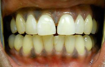 gap between teeth before after photos