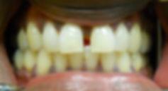 gap between teeth before after photo
