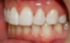 peg lateral, composite bonding