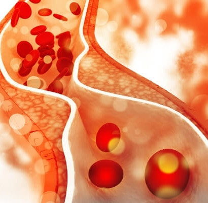 7 סיבוכים של כולסטרול גבוה - וכיצד ניתן למנוע אותם