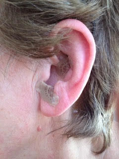 ear acupuncture edith.jpg