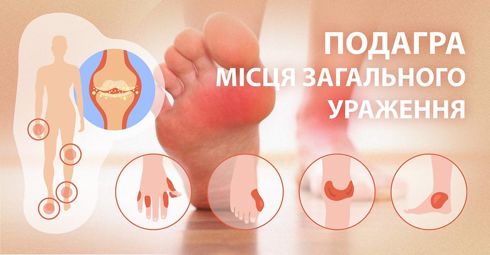 Подагра місця ураження - zborovik.com.ua
