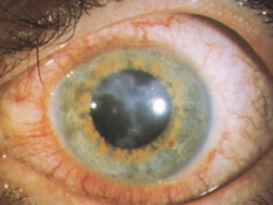 Hornhautentzündung