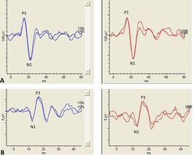 Importanza dei potenziali evocati miogenici vestibolari nella verifica della funzione del sistema ot