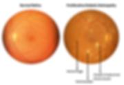 TeleMedC Diabetic Retinopathy Multi-Level Grading Solution
