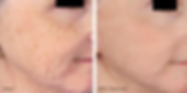 MICRONEEDLING PIC.png