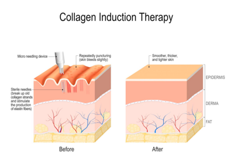 MICRONEEDLING PIC DIAGRAM.png