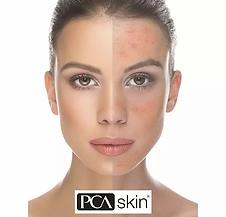 pca_skin.webp