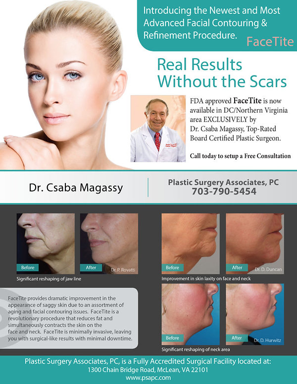 FaceTite by Dr. Csaba Magassy at Plastic Surgery Associates, PC - before and after images