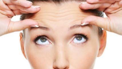 Testa de mulher com rugas antes de realizar a aplicação de toxina botulínica.