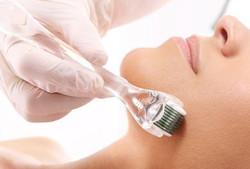 Dermatologista realizando microagulhamento em rosto de mulher.