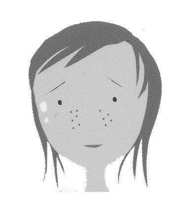 毛穴が目立つ(皮脂分必過剰)1.jpg