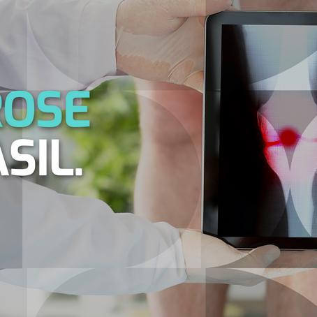 A artrose no Brasil.